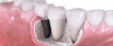 اضرار تركيب الأسنان الثابتة والمتحركة
