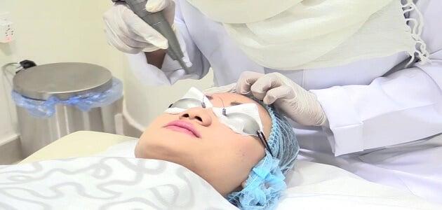 اضرار تشقير الحواجب بالليزر على الجلد