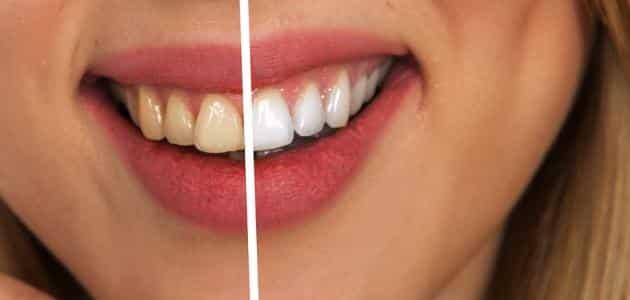 برشام الفحم لتبييض الأسنان