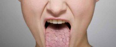 أسباب اصفرار اللسان والرائحة الكريهة وكيفية علاجها في أسبوع