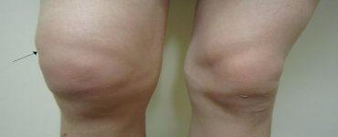 أسباب تورم الركبة من الجنب وعلاجها بالأعشاب الطبيعية