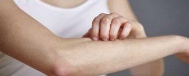 أسباب حكة الجسم الشديدة قبل النوم