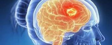 أعراض سرطان المخ المتقدم ومراحله