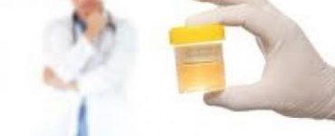 اعراض الاملاح في البول عند النساء
