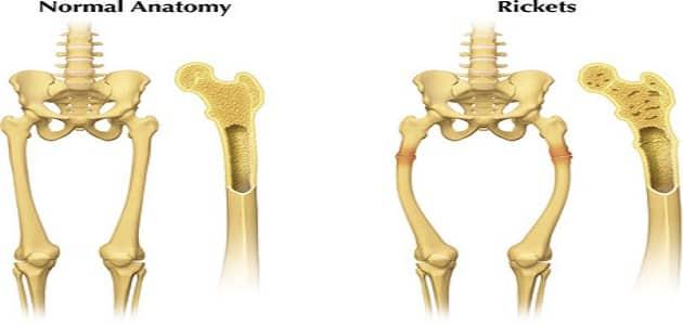 اعراض لين العظام لدى الاطفال والكبار