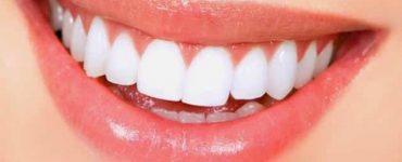 الطرق الصحية لتنظيف الأسنان من للاصفرار في أسبوع فقط