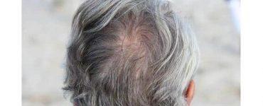 العلاقة بين الشيب ولب الشعرة وعلاجه