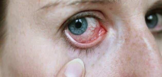 عراض ضعف شبكية العين وعلاجه