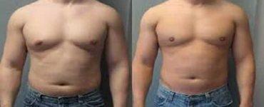 علاج التثدي عند الرجال بالأعشاب والكركم