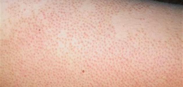 علاج مرض جلد الدجاجة بدون ليزر