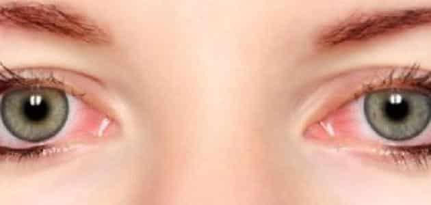 كيفية التخلص من حرقان العين عند الاستيقاظ