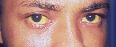 5 اسباب لاصفرار العين الخفيف عند الشباب وكبار السن