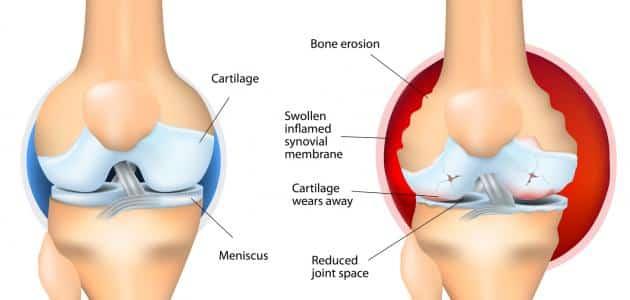 أفضل علاج لجفاف سائل الركبة الزلالي في خمس أيام فقط