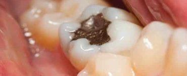أنواع حشوات الأسنان الدائمة والمتحركة وطريقة تركيبها بالصور