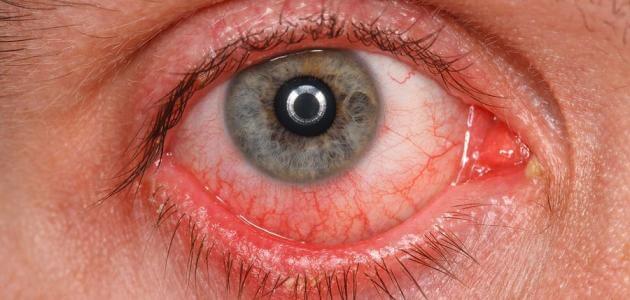 علاج احمرار العين عند ارتداء العدسات اللاصقة الطبية
