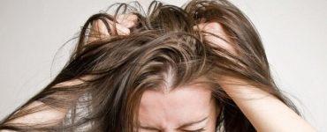 علاج نهائي لقشرة الشعر الدهني بالخل والليمون