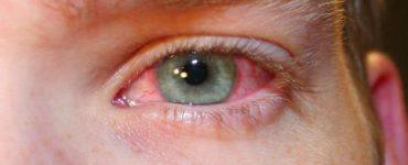 كيفية التخلص من إجهاد العين في المنزل بالأعشاب الطبيعية