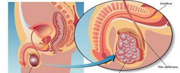 هل سرطان الخصية يمنع الحمل والإنجاب للرجال
