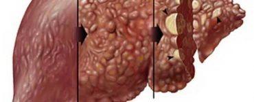 10 فوائد علاجية لحبوب كولشيسين للتليف الكبدي