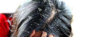 أسباب انتشار القشور على جذوع الشعر
