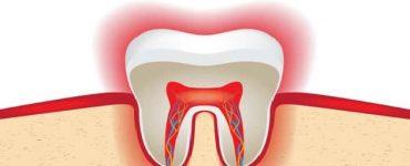ألم عصب الأسنان