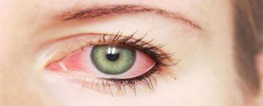 اسرع علاج للنزيف الداخلي والخارجي للعين في المنزل