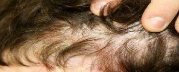 افضل طريقة لعلاج سعفة الرأس عند الاطفال