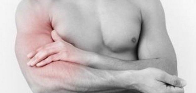 علاج الام العضلات بعد التمرين