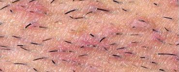 علاج التهاب بصيلات الشعر في المنطقة الحساسة بالأعشاب