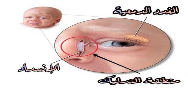 علاج انسداد القناة الدمعية عند الكبار في 3 ايام