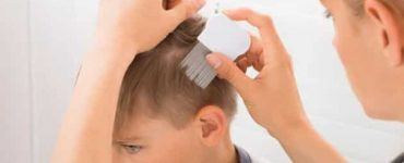 ما أسباب تقصف الشعر من الامام للأطفال