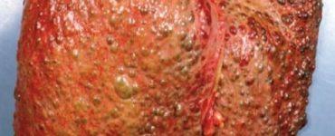 هل مرض تشمع الكبد يسبب الوفاة وما مدي خطورته