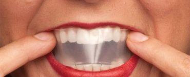 اسهل طريقة لبرد الأسنان في البيت بالتفصيل