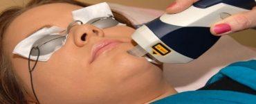 اضرار تجارب الفراكشنال ليزر على مسامات الوجه واثاره الجانبية