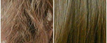 علاج الشعر المحروق