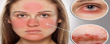 علاج مرض الوردية بالعسل وزيت الزيتون