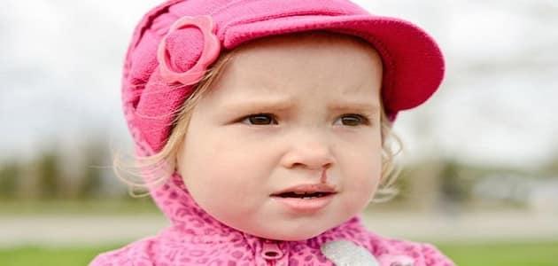 علاج نزيف الأنف المستمر عند الأطفال بالاعشاب