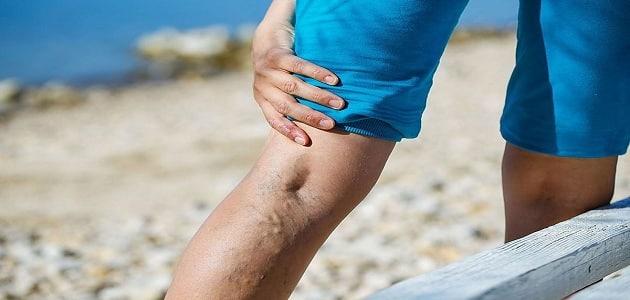 ما اسباب وجود الم خلف الركبة وفي الفخد اثناء القيام او الجلوس