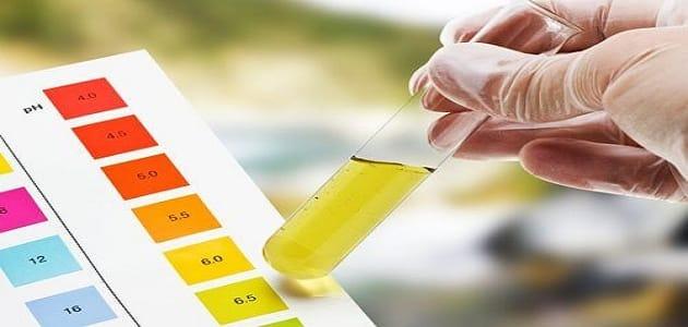 كيفية قراءة تحليل البول للحامل