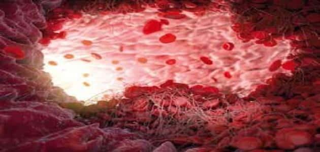 هل سيولة الدم المنخفضة مرض خطير