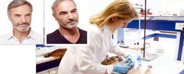 8 ممنوعات لا يمكن المساس لها بعد زراعة الشعر