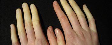 علاج تورم الاصابع وازالة اللون الازرق في الشتاء