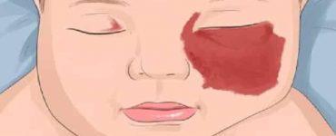 علاج سريع المفعول للوحمة الدموية في المخ