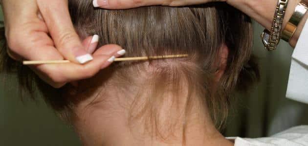 كيف أتخلص من الصيبان في الشعر