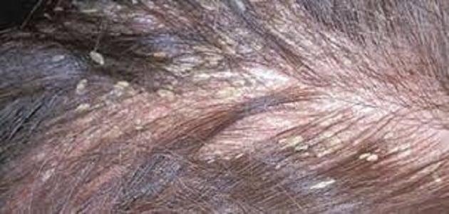 أسرع طريقة للتخلص من حشرات الشعر