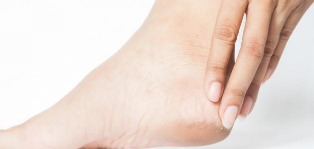 طريقة التخلص من خشونة القدمين