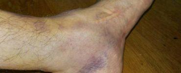 طريقة علاج كدمات القدم
