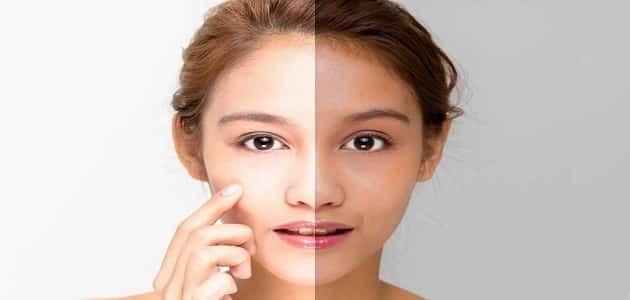 خلطة كريمات تبيض الوجه في اسبوع